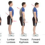 poor-posture-exercises-to-improve
